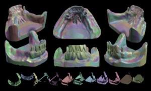 Teeth1_scans